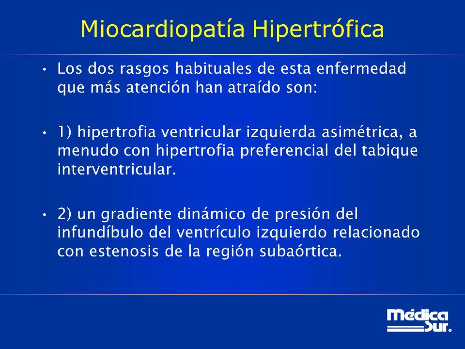 Miocardiopatía Hipertrófica Los dos rasgos habituales de esta enfermedad que más atención han atraído son: 1) hipertrofia ventricular izquierda asimét