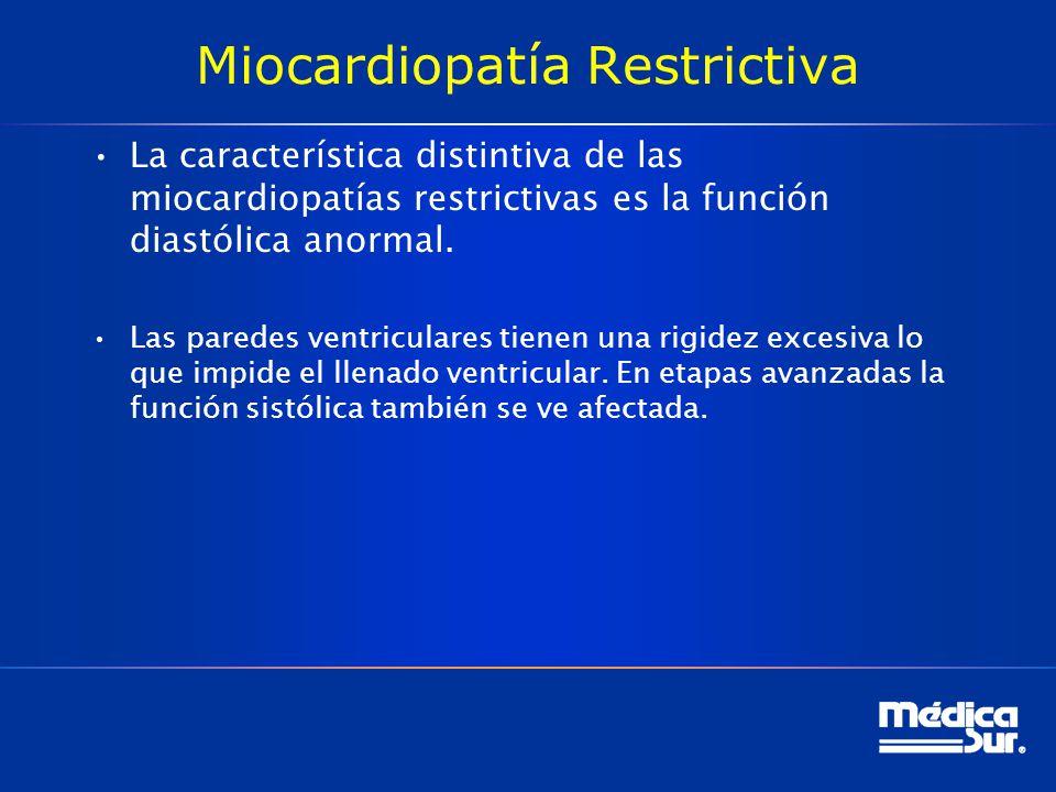 Miocardiopatía Restrictiva La característica distintiva de las miocardiopatías restrictivas es la función diastólica anormal. Las paredes ventriculare