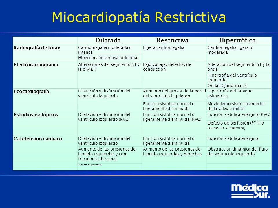 Miocardiopatía Restrictiva