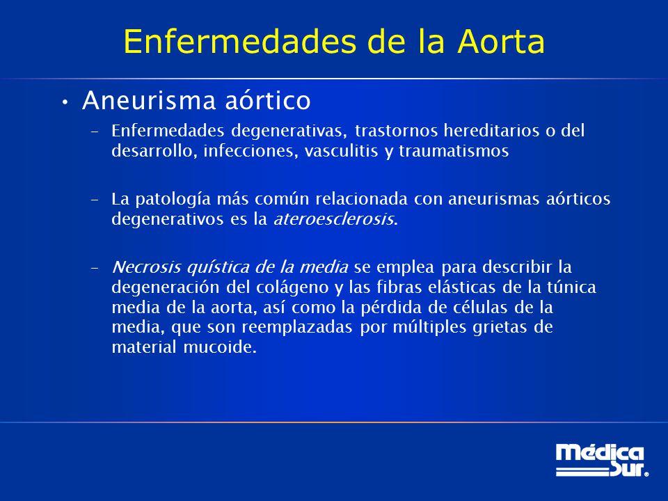 Enfermedades de la Aorta Aneurisma aórtico –Enfermedades degenerativas, trastornos hereditarios o del desarrollo, infecciones, vasculitis y traumatism