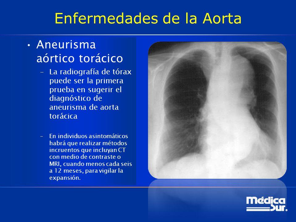 Enfermedades de la Aorta Aneurisma aórtico torácico –La radiografía de tórax puede ser la primera prueba en sugerir el diagnóstico de aneurisma de aor