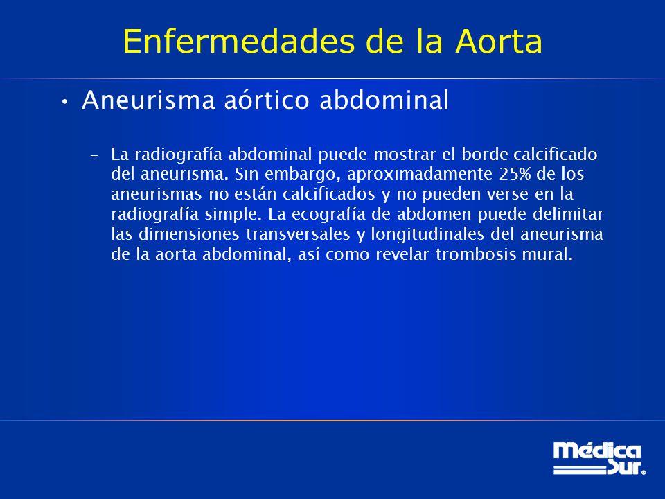 Enfermedades de la Aorta Aneurisma aórtico abdominal –La radiografía abdominal puede mostrar el borde calcificado del aneurisma. Sin embargo, aproxima