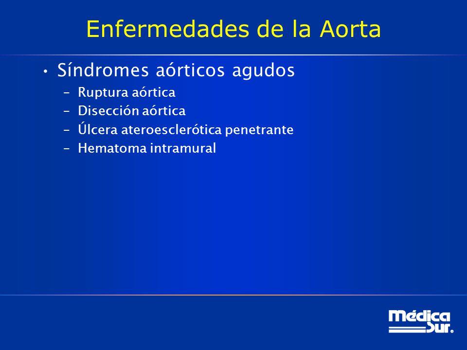 Enfermedades de la Aorta Síndromes aórticos agudos –Ruptura aórtica –Disección aórtica –Úlcera ateroesclerótica penetrante –Hematoma intramural