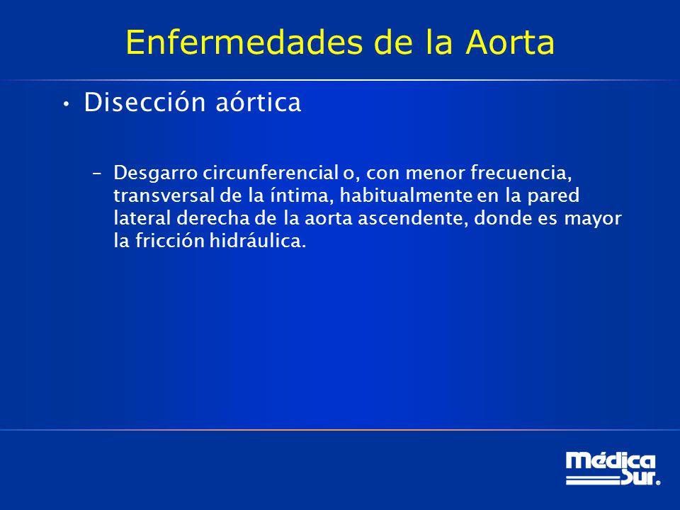 Enfermedades de la Aorta Disección aórtica –Desgarro circunferencial o, con menor frecuencia, transversal de la íntima, habitualmente en la pared late