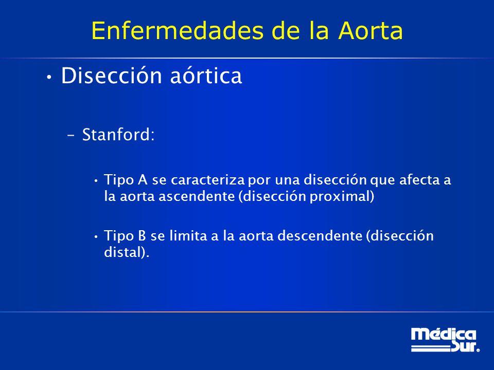 Enfermedades de la Aorta Disección aórtica –Stanford: Tipo A se caracteriza por una disección que afecta a la aorta ascendente (disección proximal) Ti
