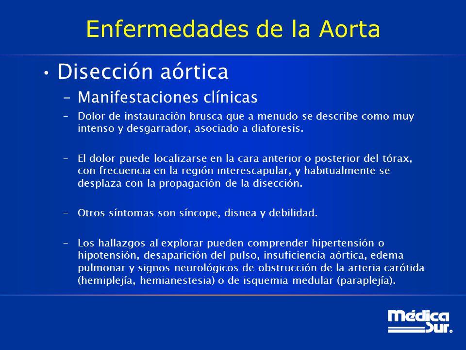 Enfermedades de la Aorta Disección aórtica –Manifestaciones clínicas –Dolor de instauración brusca que a menudo se describe como muy intenso y desgarr