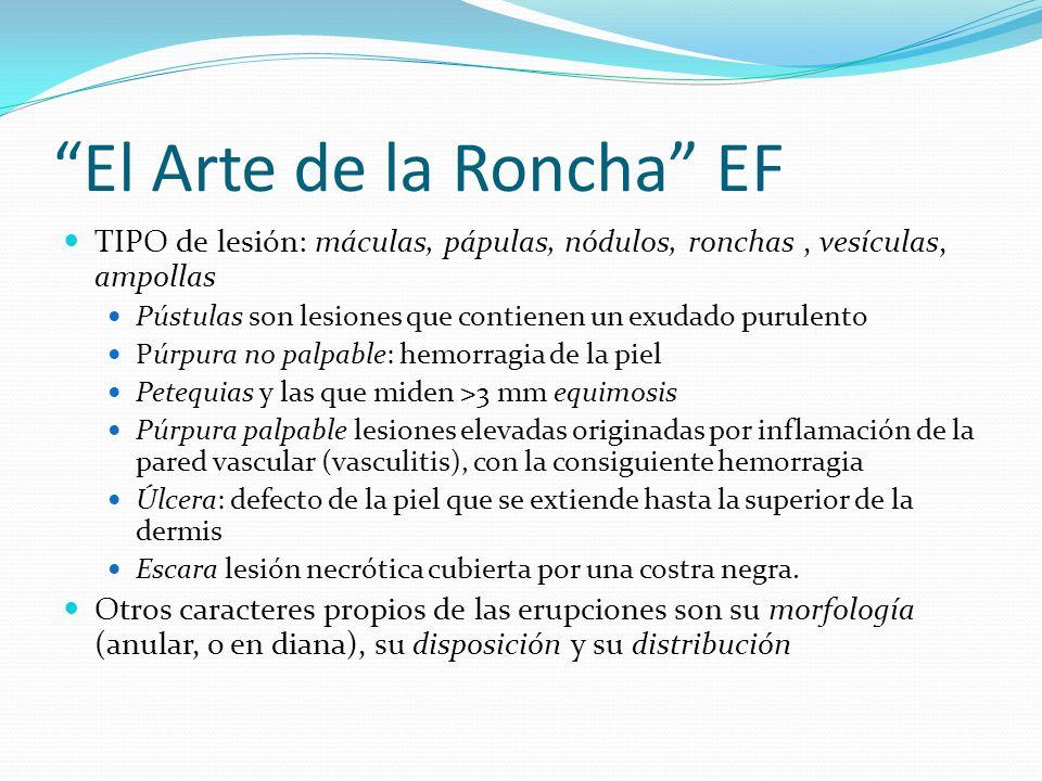 El Arte de la Roncha EF TIPO de lesión: máculas, pápulas, nódulos, ronchas, vesículas, ampollas Pústulas son lesiones que contienen un exudado purulen