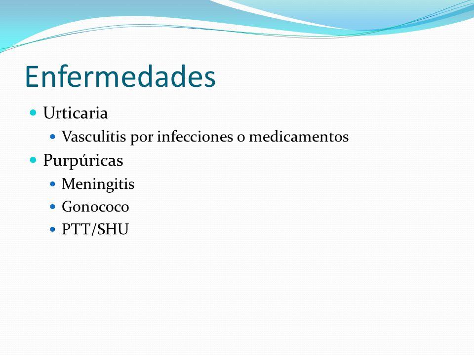 Enfermedades Urticaria Vasculitis por infecciones o medicamentos Purpúricas Meningitis Gonococo PTT/SHU