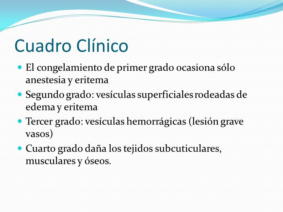 Cuadro Clínico El congelamiento de primer grado ocasiona sólo anestesia y eritema Segundo grado: vesículas superficiales rodeadas de edema y eritema T