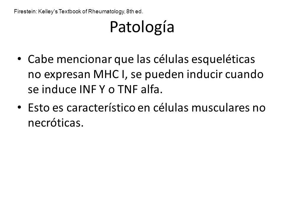 Patología Cabe mencionar que las células esqueléticas no expresan MHC I, se pueden inducir cuando se induce INF Y o TNF alfa. Esto es característico e