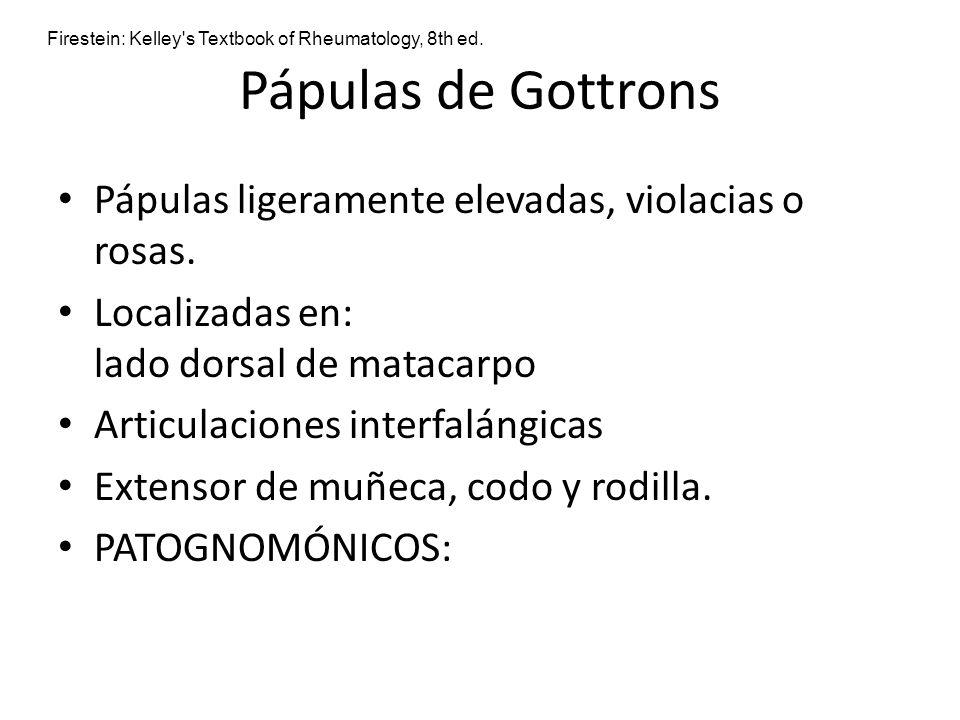 Pápulas de Gottrons Pápulas ligeramente elevadas, violacias o rosas. Localizadas en: lado dorsal de matacarpo Articulaciones interfalángicas Extensor