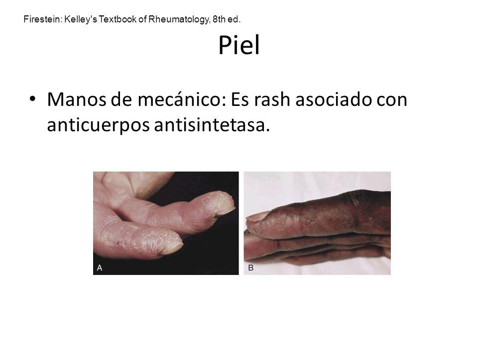 Piel Manos de mecánico: Es rash asociado con anticuerpos antisintetasa. Firestein: Kelley's Textbook of Rheumatology, 8th ed.
