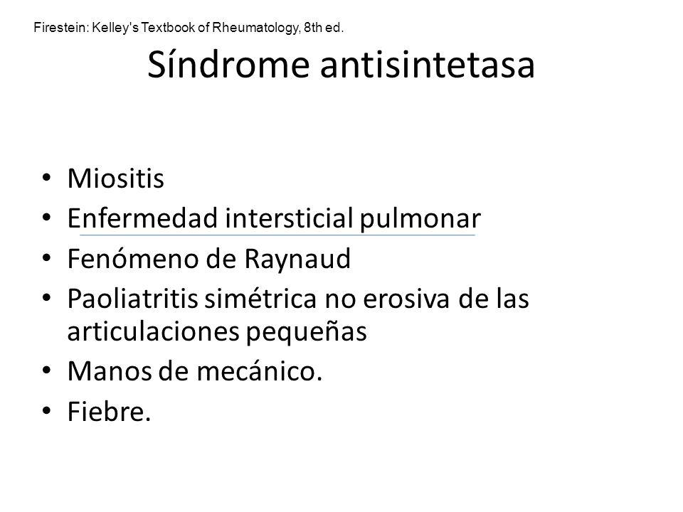 Síndrome antisintetasa Miositis Enfermedad intersticial pulmonar Fenómeno de Raynaud Paoliatritis simétrica no erosiva de las articulaciones pequeñas