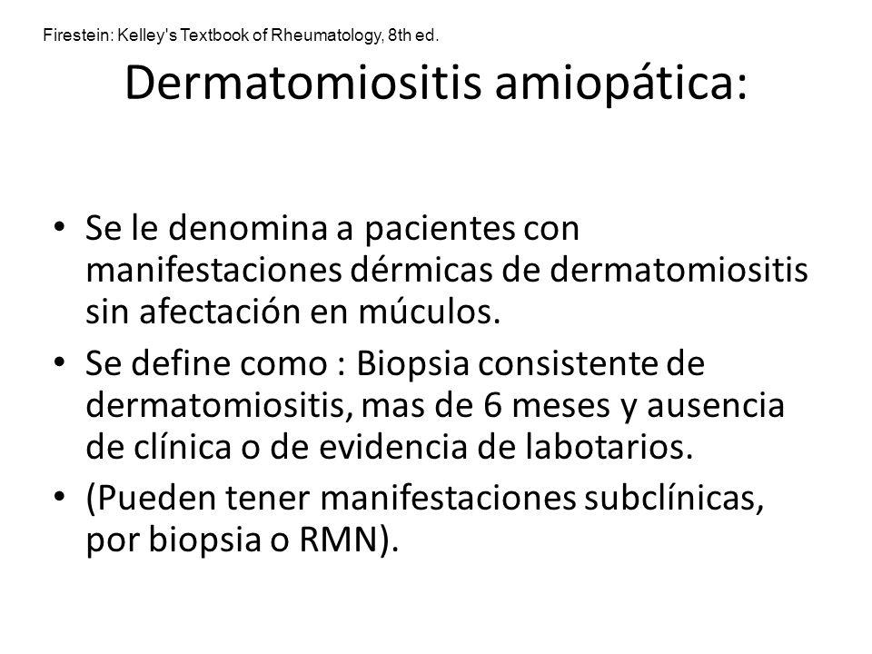 Dermatomiositis amiopática: Se le denomina a pacientes con manifestaciones dérmicas de dermatomiositis sin afectación en múculos. Se define como : Bio