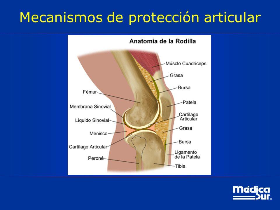 Mecanismos de protección articular