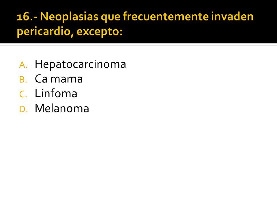 A. Hepatocarcinoma B. Ca mama C. Linfoma D. Melanoma