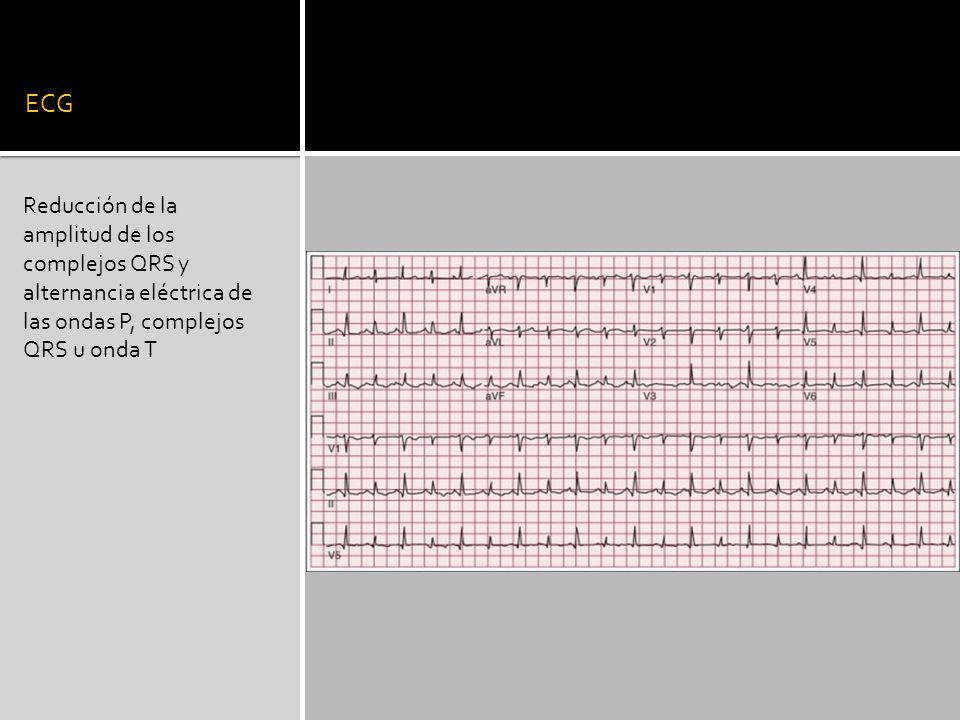 ECG Reducción de la amplitud de los complejos QRS y alternancia eléctrica de las ondas P, complejos QRS u onda T