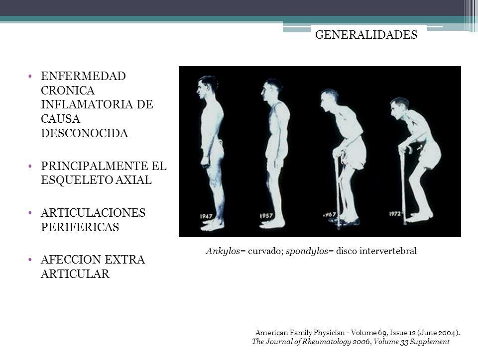 ENFERMEDAD CRONICA INFLAMATORIA DE CAUSA DESCONOCIDA PRINCIPALMENTE EL ESQUELETO AXIAL ARTICULACIONES PERIFERICAS AFECCION EXTRA ARTICULAR GENERALIDAD