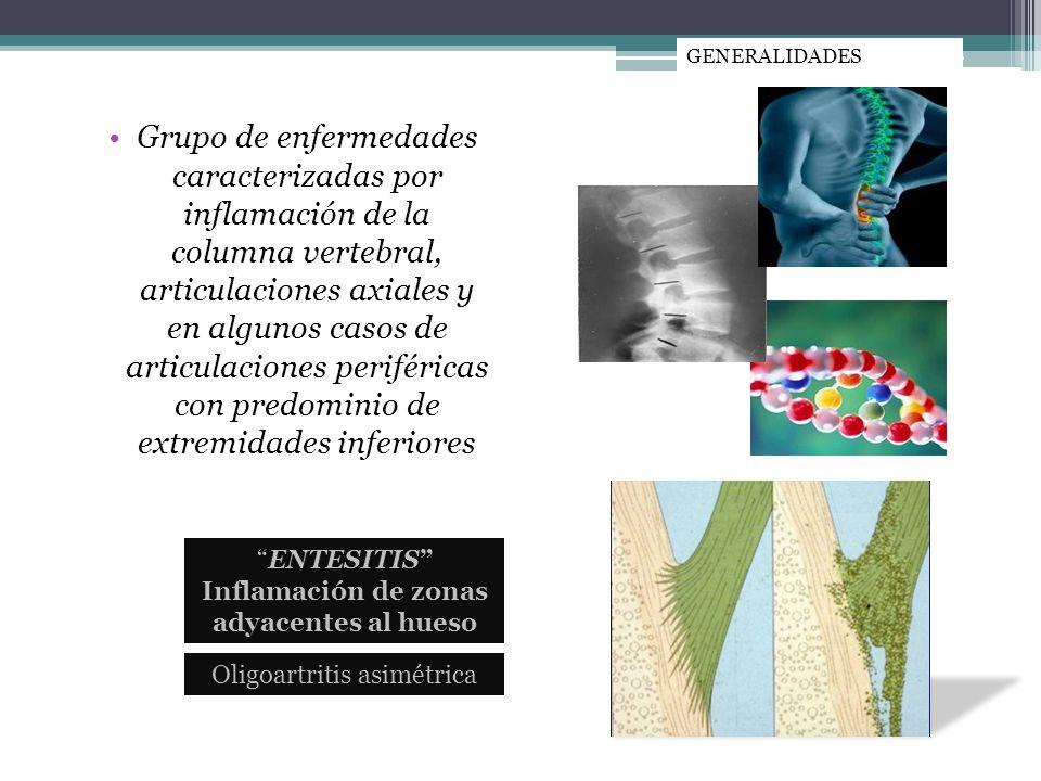 Grupo de enfermedades caracterizadas por inflamación de la columna vertebral, articulaciones axiales y en algunos casos de articulaciones periféricas