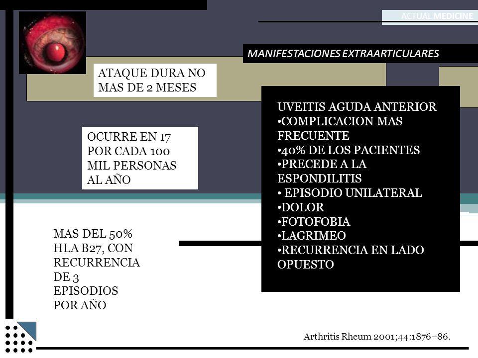 ACTUAL MEDICINE MANIFESTACIONES EXTRAARTICULARES UVEITIS AGUDA ANTERIOR COMPLICACION MAS FRECUENTE 40% DE LOS PACIENTES PRECEDE A LA ESPONDILITIS EPIS