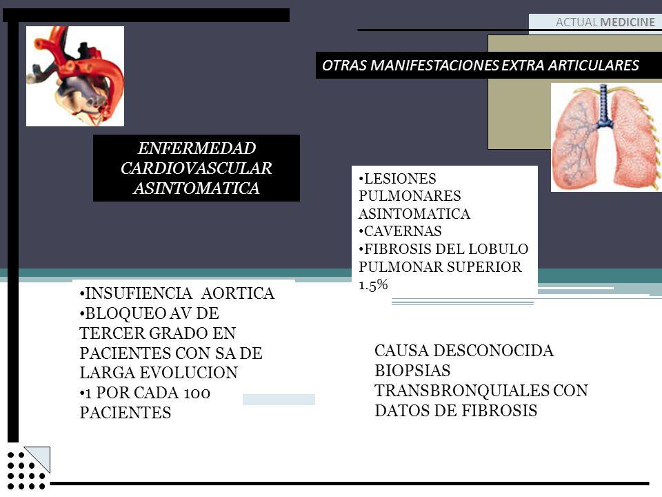 INSUFIENCIA AORTICA BLOQUEO AV DE TERCER GRADO EN PACIENTES CON SA DE LARGA EVOLUCION 1 POR CADA 100 PACIENTES ACTUAL MEDICINE OTRAS MANIFESTACIONES E