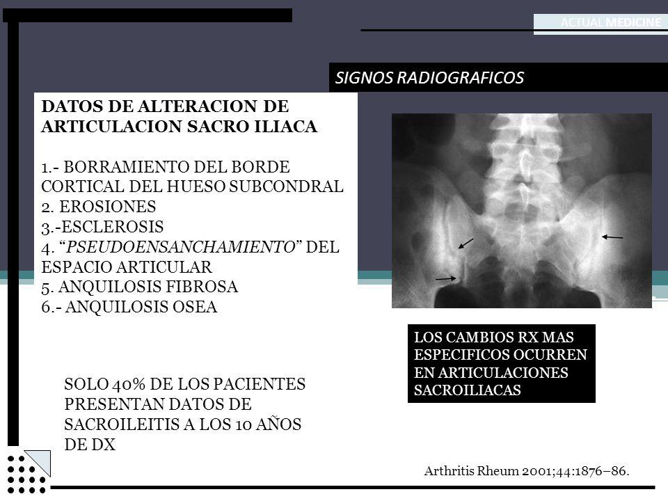ACTUAL MEDICINE SIGNOS RADIOGRAFICOS DATOS DE ALTERACION DE ARTICULACION SACRO ILIACA 1.- BORRAMIENTO DEL BORDE CORTICAL DEL HUESO SUBCONDRAL 2. EROSI