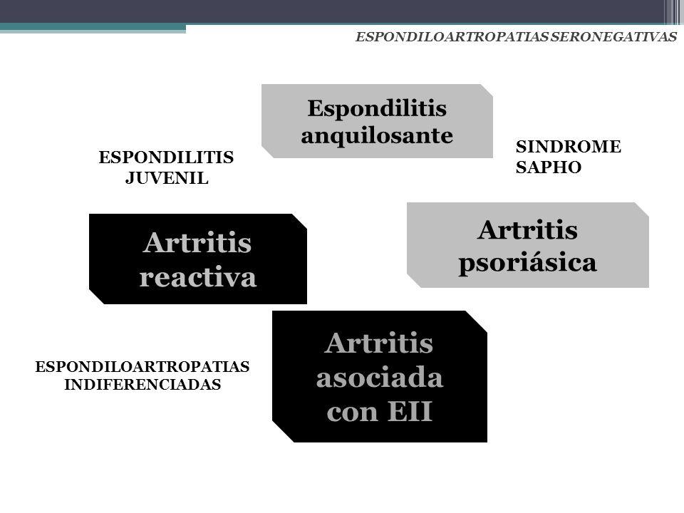 Espondilitis anquilosante Artritis psoriásica Artritis reactiva Artritis asociada con EII ESPONDILOARTROPATIAS SERONEGATIVAS ESPONDILITIS JUVENIL ESPO