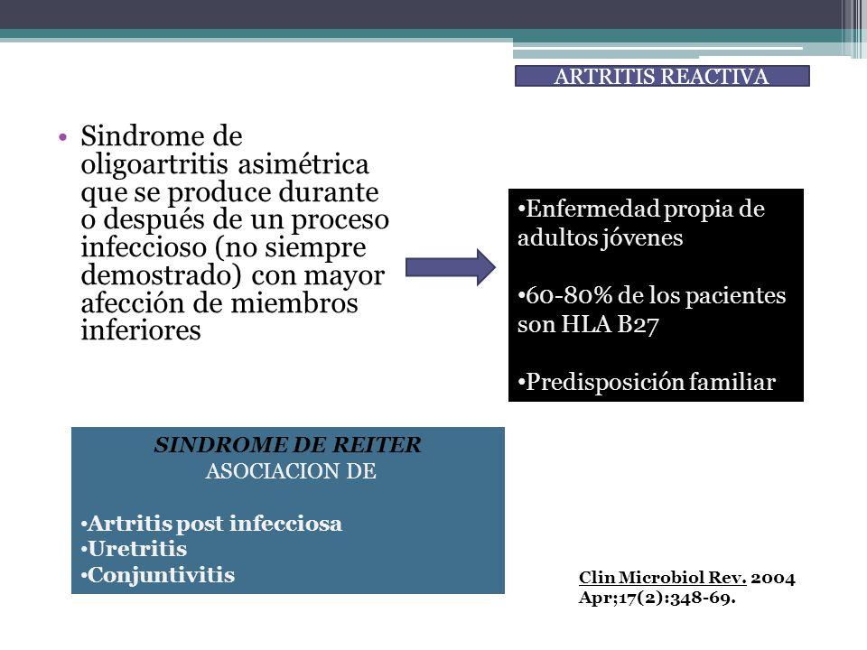 Sindrome de oligoartritis asimétrica que se produce durante o después de un proceso infeccioso (no siempre demostrado) con mayor afección de miembros