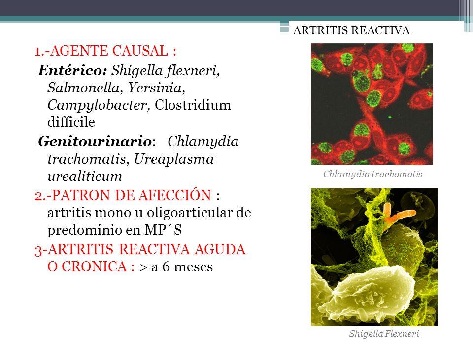 1.-AGENTE CAUSAL : Entérico: Shigella flexneri, Salmonella, Yersinia, Campylobacter, Clostridium difficile Genitourinario: Chlamydia trachomatis, Urea