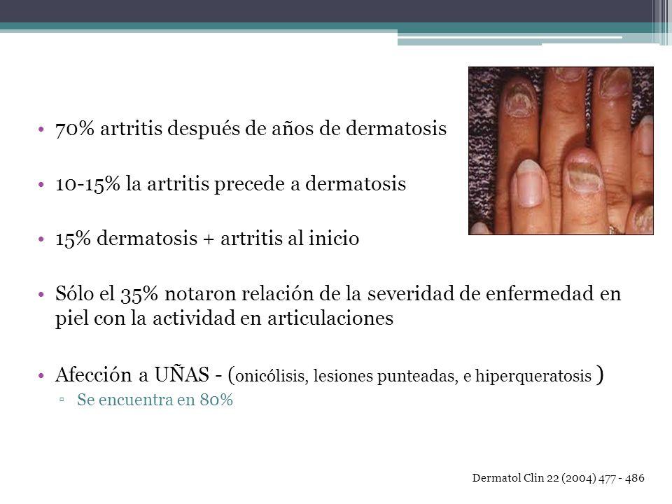 70% artritis después de años de dermatosis 10-15% la artritis precede a dermatosis 15% dermatosis + artritis al inicio Sólo el 35% notaron relación de