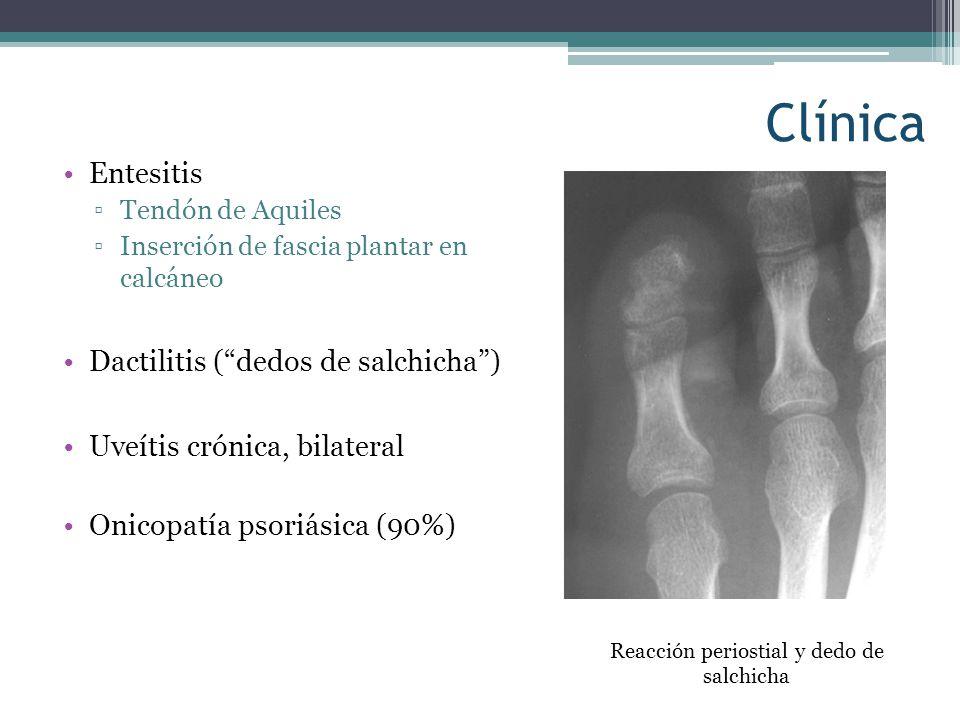 Clínica Entesitis Tendón de Aquiles Inserción de fascia plantar en calcáneo Dactilitis (dedos de salchicha) Uveítis crónica, bilateral Onicopatía psor