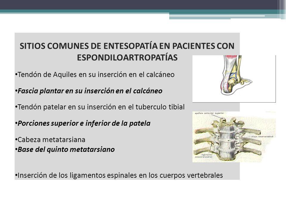 SITIOS COMUNES DE ENTESOPATÍA EN PACIENTES CON ESPONDILOARTROPATÍAS Tendón de Aquiles en su inserción en el calcáneo Fascia plantar en su inserción en