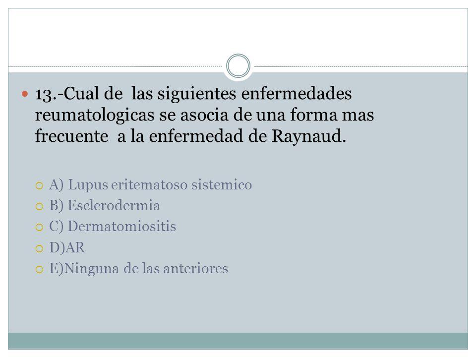 13.-Cual de las siguientes enfermedades reumatologicas se asocia de una forma mas frecuente a la enfermedad de Raynaud.