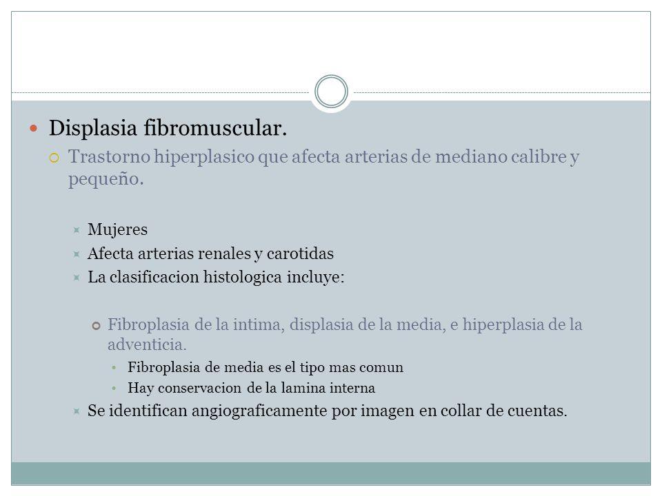 Displasia fibromuscular.Trastorno hiperplasico que afecta arterias de mediano calibre y pequeño.