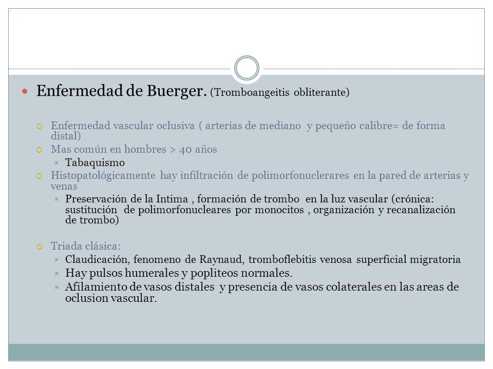Enfermedad de Buerger.