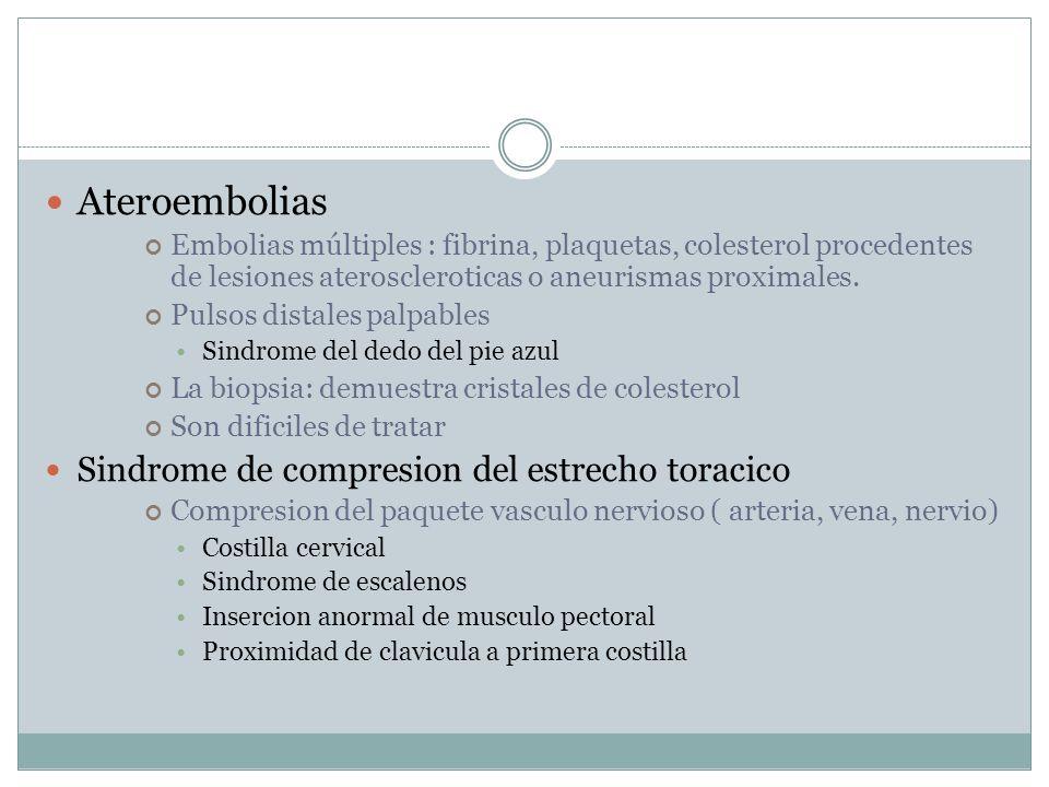 Ateroembolias Embolias múltiples : fibrina, plaquetas, colesterol procedentes de lesiones ateroscleroticas o aneurismas proximales.