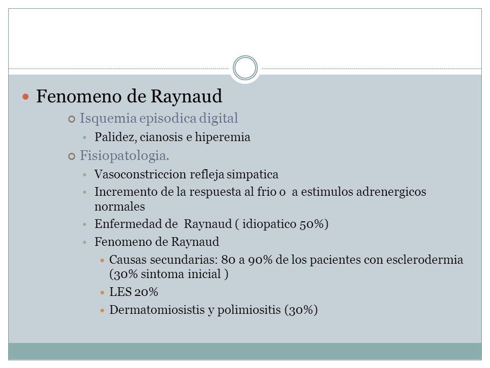 Fenomeno de Raynaud Isquemia episodica digital Palidez, cianosis e hiperemia Fisiopatologia.
