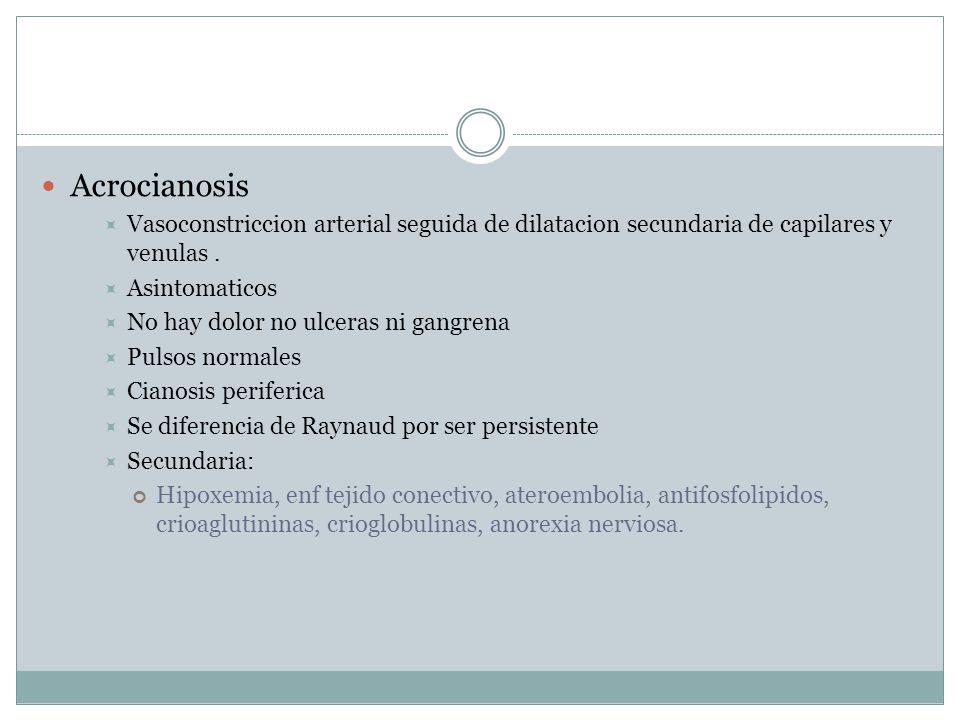 Acrocianosis Vasoconstriccion arterial seguida de dilatacion secundaria de capilares y venulas.