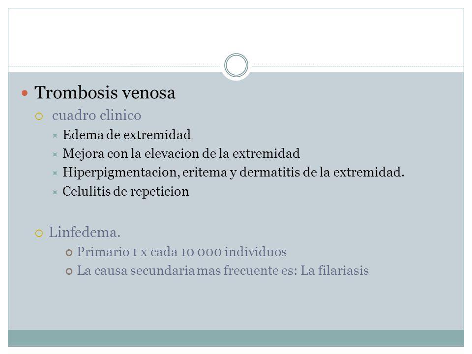 Trombosis venosa cuadro clinico Edema de extremidad Mejora con la elevacion de la extremidad Hiperpigmentacion, eritema y dermatitis de la extremidad.