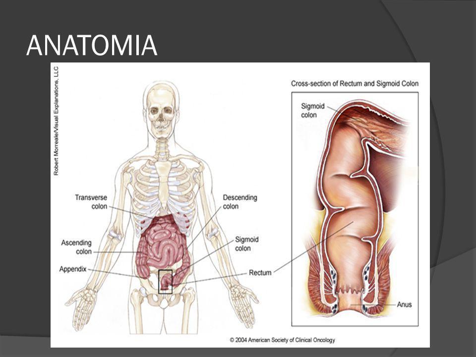 POLIPOSIS ADENOMATOSA FAMILIAR <1% de Ca colorrectal Adenomas colónicos en la infancia Síntomas aparecen a los 16 años Ca aparece en 90% de los pacientes no tratados a los 45 años Causada por mutaciones de la línea germinal en el gen de la adenomatosis polipomatosis coli (APC) localizado en el cromosoma 5.