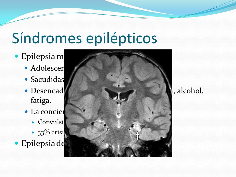 Síndromes epilépticos Epilepsia mioclónica juvenil Adolescencia.