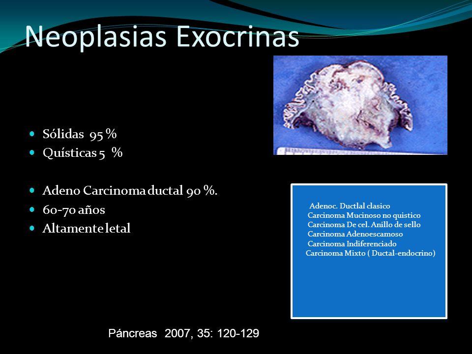 Neoplasias Exocrinas Sólidas 95 % Quísticas 5 % Adeno Carcinoma ductal 90 %. 60-70 años Altamente letal Páncreas 2007, 35: 120-129 Adenoc. Ductlal cla