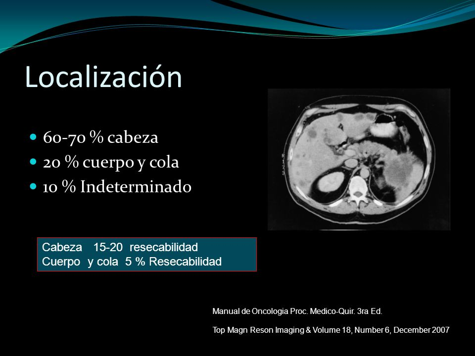 Localización 60-70 % cabeza 20 % cuerpo y cola 10 % Indeterminado Cabeza 15-20 resecabilidad Cuerpo y cola 5 % Resecabilidad Manual de Oncologia Proc.