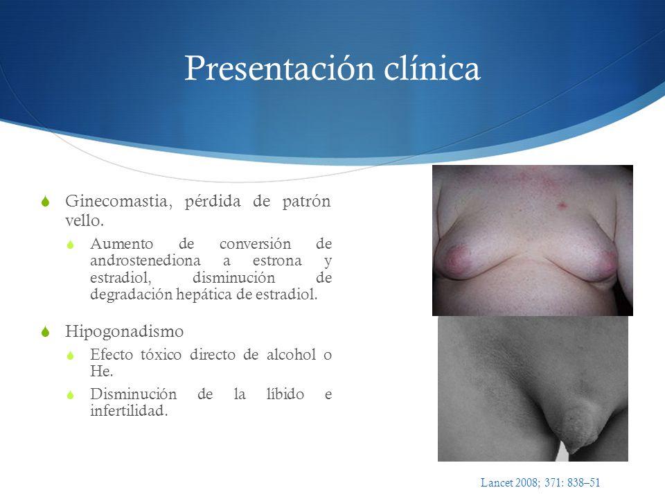Presentación clínica Ginecomastia, pérdida de patrón vello. Aumento de conversión de androstenediona a estrona y estradiol, disminución de degradación