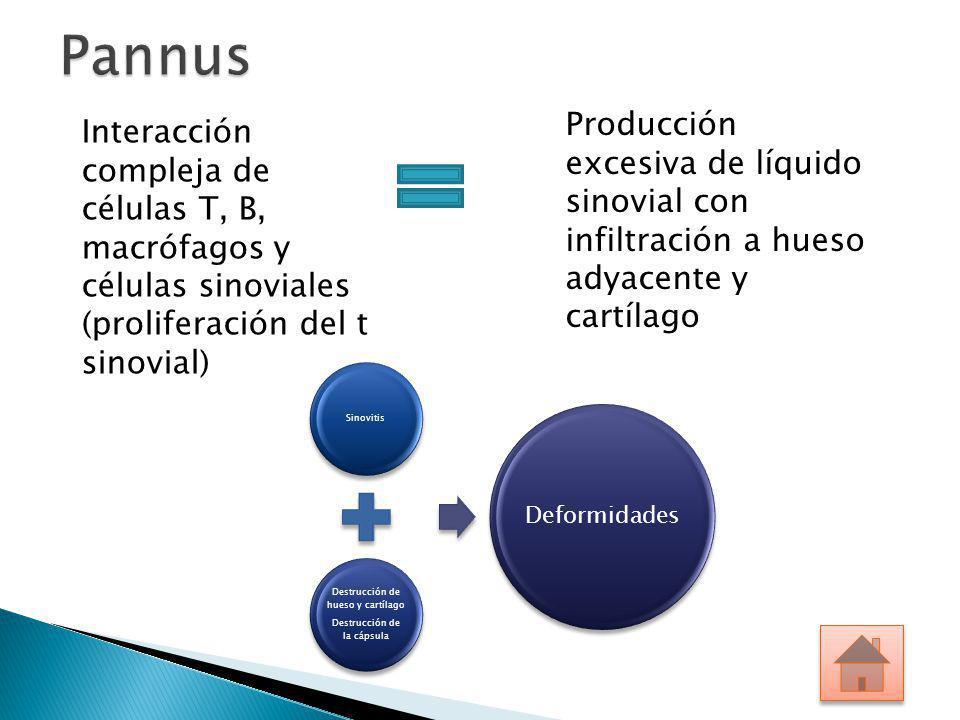 Producción excesiva de líquido sinovial con infiltración a hueso adyacente y cartílago Interacción compleja de células T, B, macrófagos y células sino