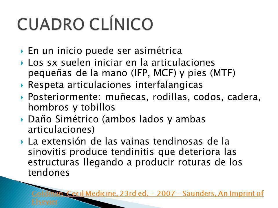 En un inicio puede ser asimétrica Los sx suelen iniciar en la articulaciones pequeñas de la mano (IFP, MCF) y pies (MTF) Respeta articulaciones interf