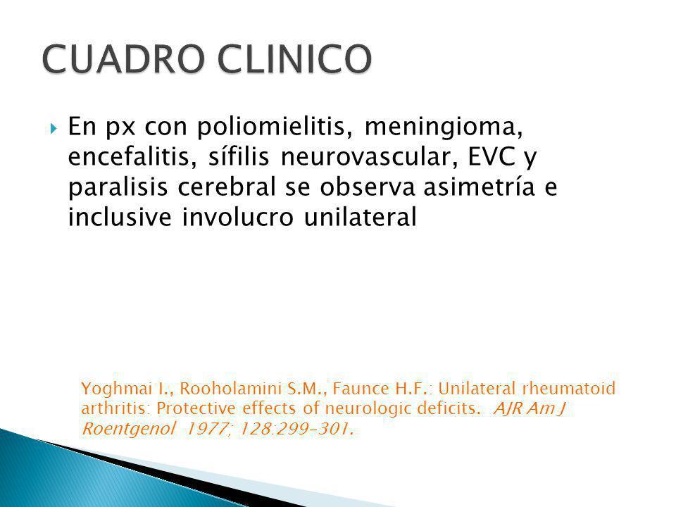 En px con poliomielitis, meningioma, encefalitis, sífilis neurovascular, EVC y paralisis cerebral se observa asimetría e inclusive involucro unilatera