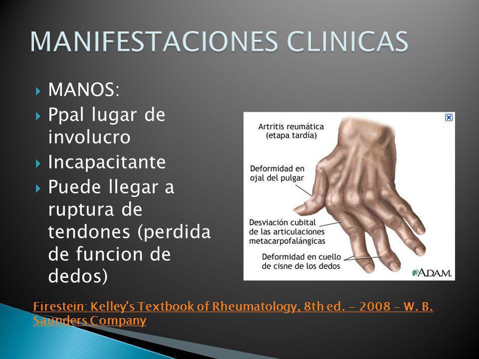 MANOS: Ppal lugar de involucro Incapacitante Puede llegar a ruptura de tendones (perdida de funcion de dedos) Firestein: Kelley's Textbook of Rheumato