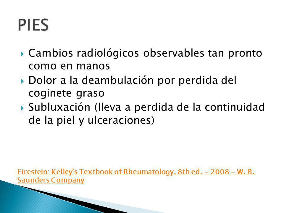 Cambios radiológicos observables tan pronto como en manos Dolor a la deambulación por perdida del coginete graso Subluxación (lleva a perdida de la co
