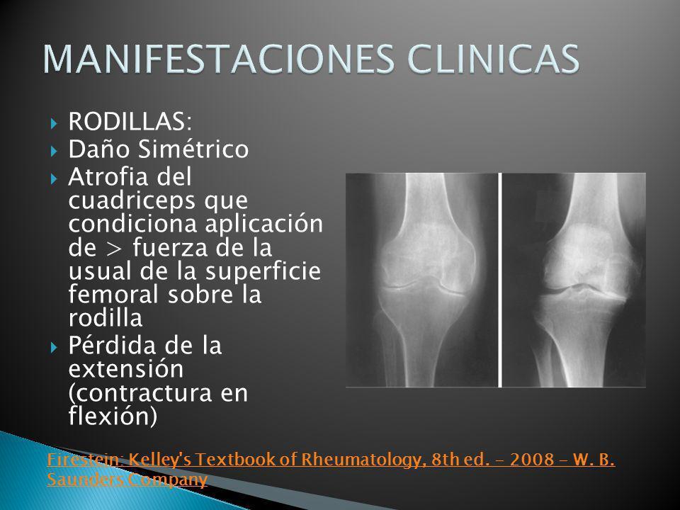 RODILLAS: Daño Simétrico Atrofia del cuadriceps que condiciona aplicación de > fuerza de la usual de la superficie femoral sobre la rodilla Pérdida de